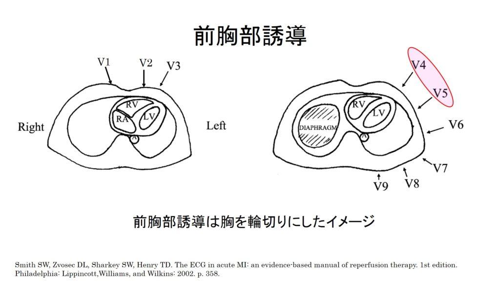 前胸部誘導のイメージ