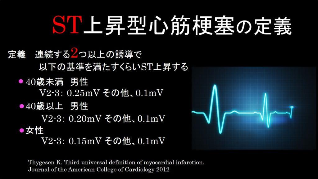 心筋梗塞の定義