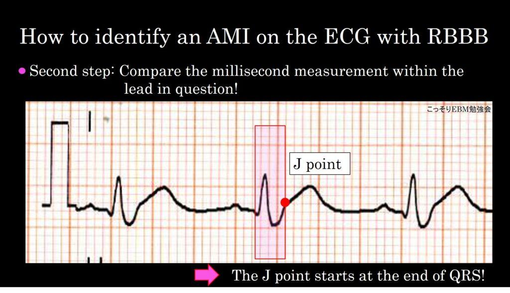 心電図で説明