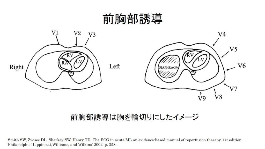 胸部誘導のイメージ