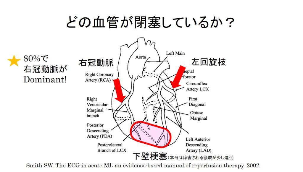 下壁梗塞の位置