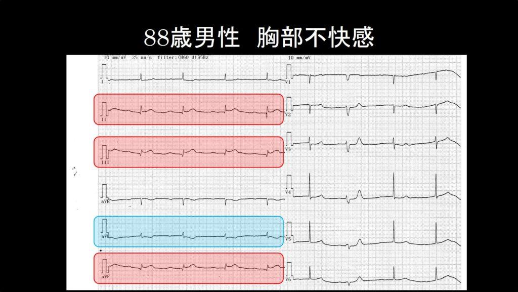症例1心電図