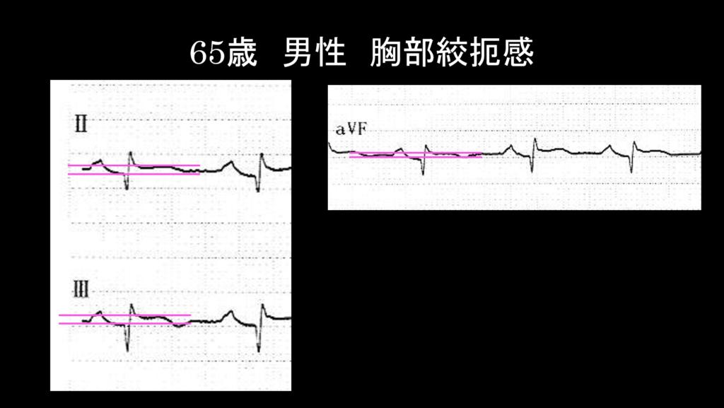 症例2心電図