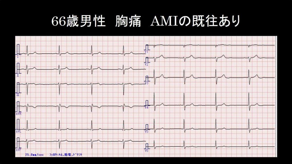 症例3心電図