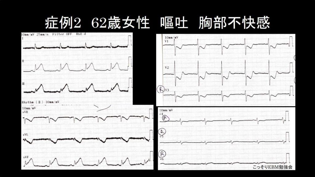 症例2 心電図