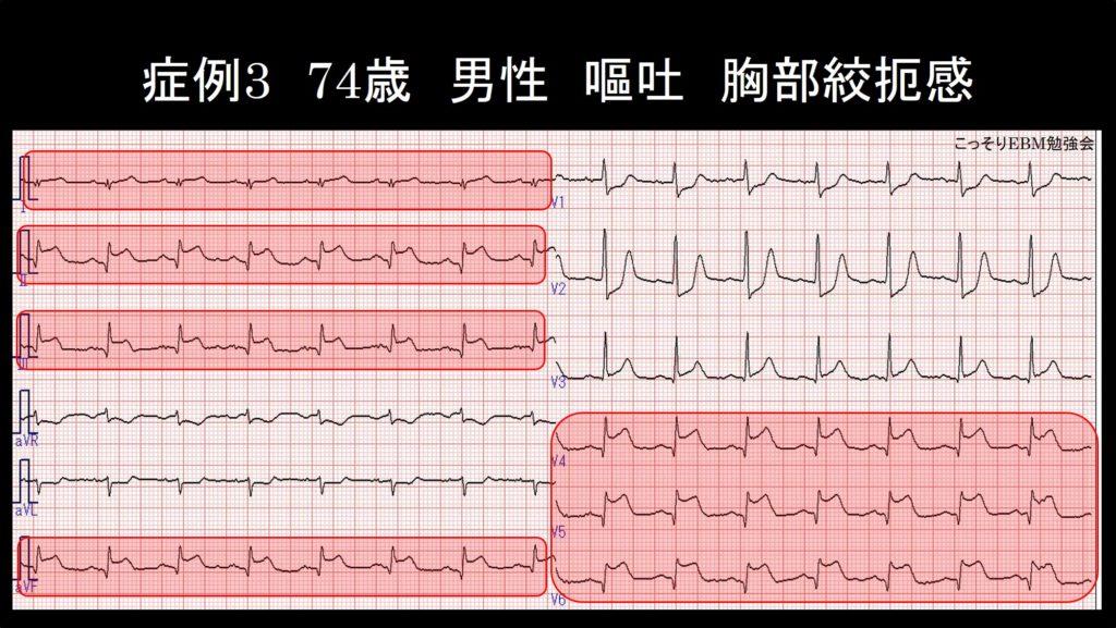 症例3 心電図