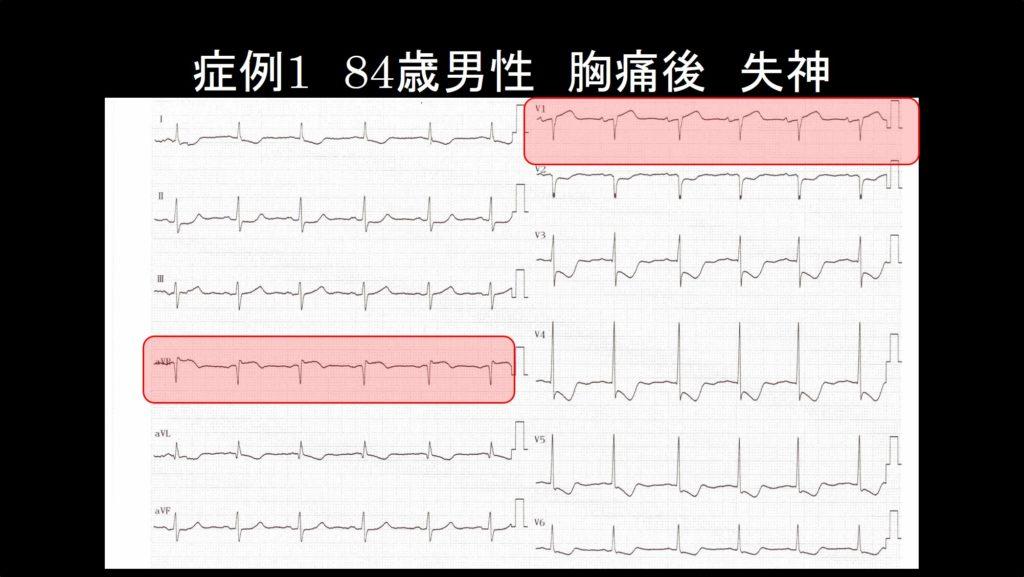 症例1 心電図