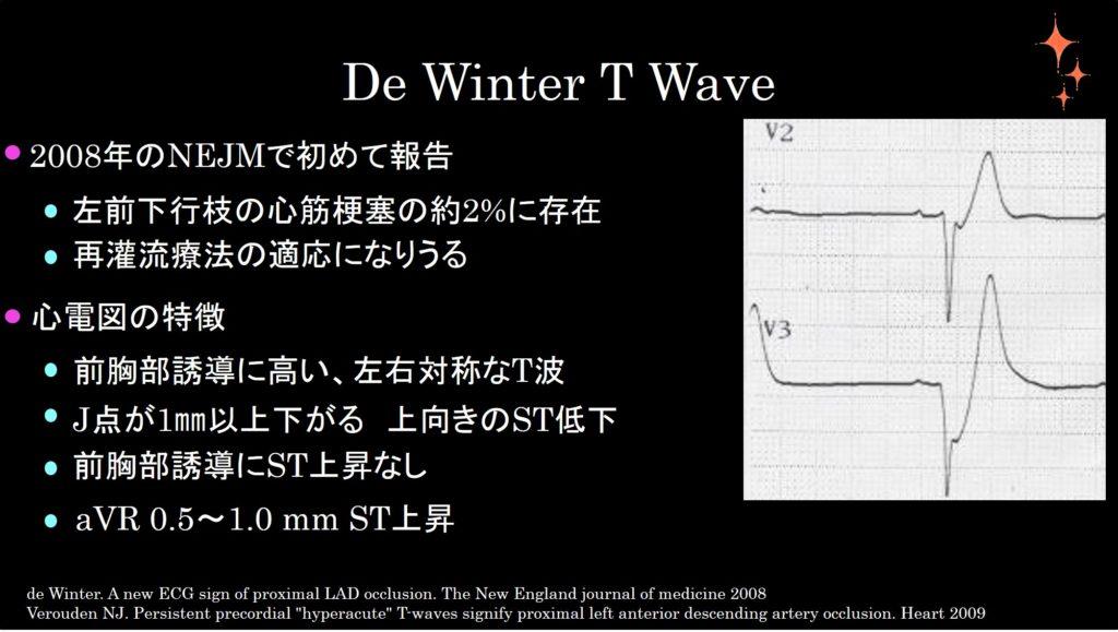 De Winter T Wave