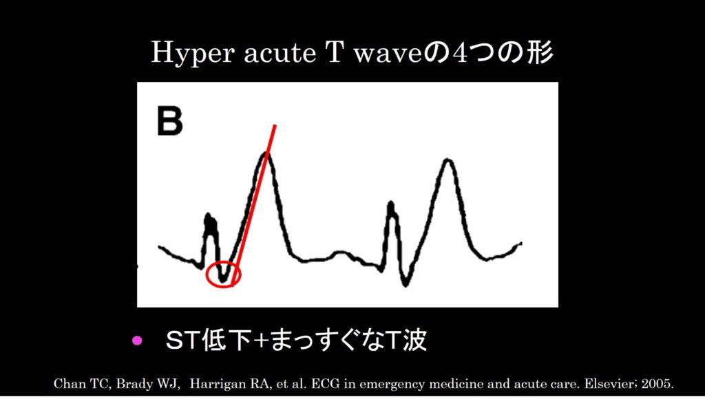 Hyper acute T wave b