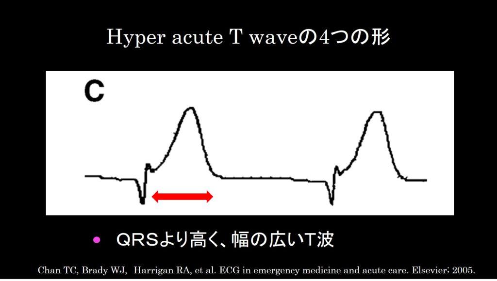 Hyper acute T wave c