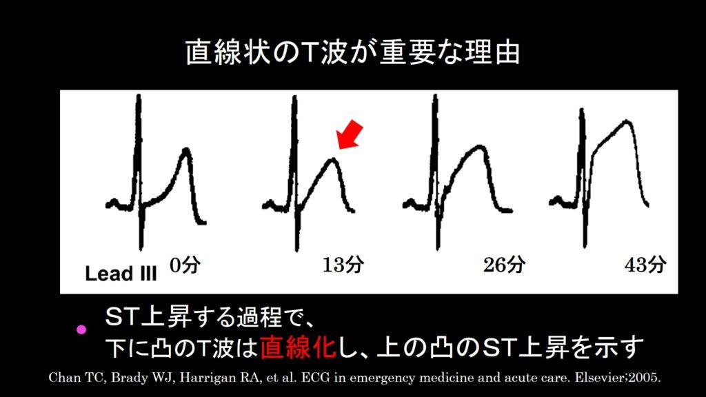直線状のT波上昇が重要な理由