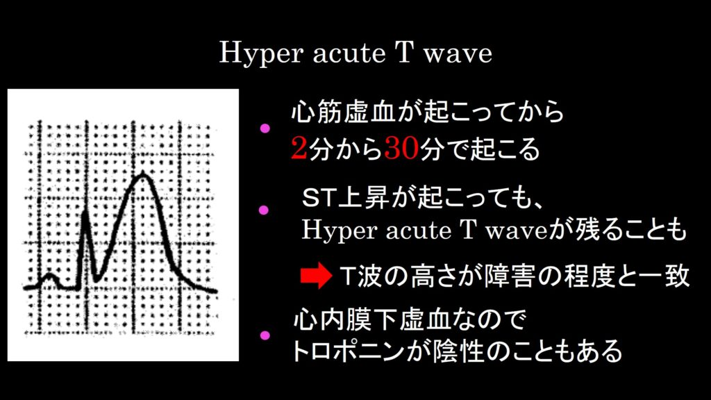 Hyper acute T wave