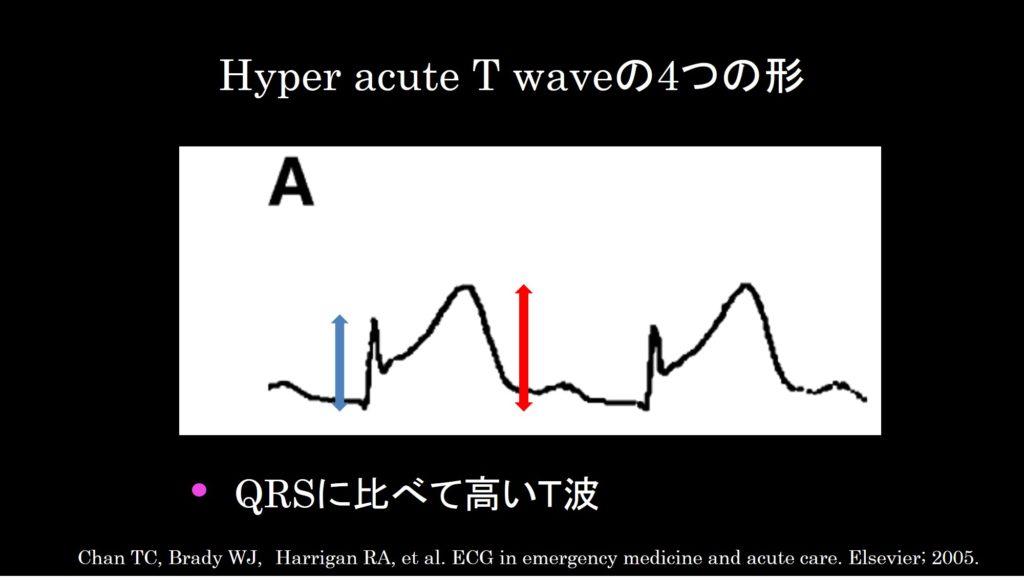 Hyper acute T wave a